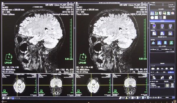 MR画像 左:ノイズ低減後 右:元画像