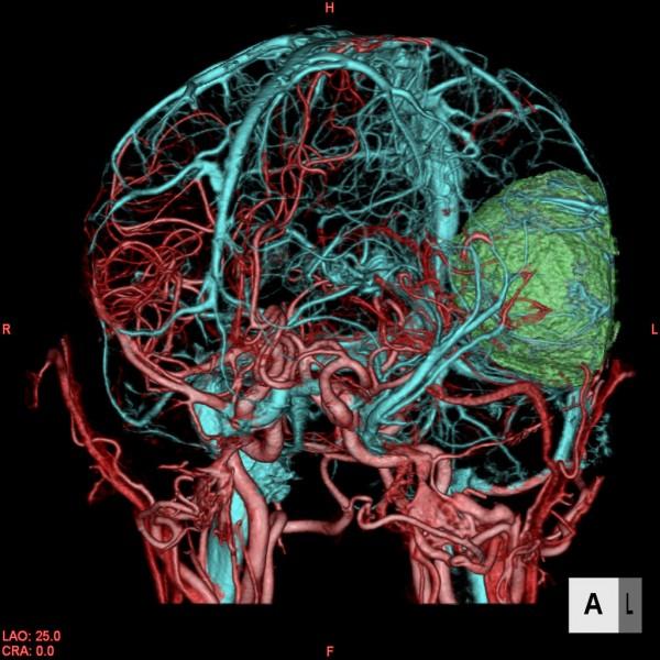 Brain-tumor