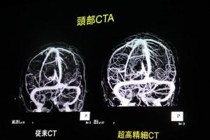 東芝CT図2